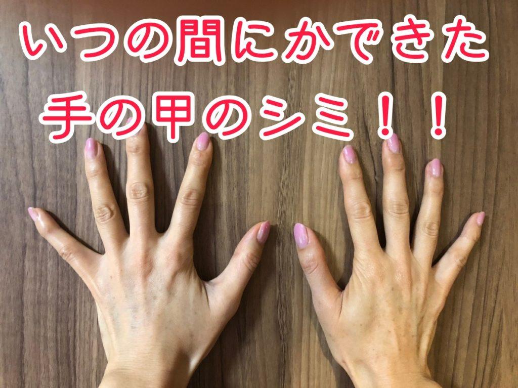 手の甲 シミ